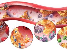 ciscenje krvnih sudova
