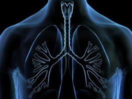 plucna bolest