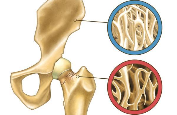 osteopenija