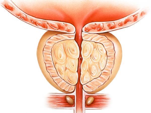 prostata bolovi