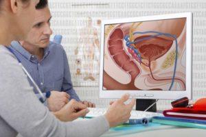 Gyertyák a prostatitis népi jogorvoslatokból Prostatitis papilloma