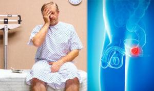 Van egy stagnáló prostatitisem