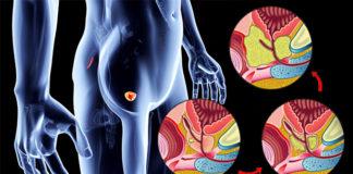 rak prostate metastaze