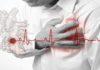 kako se otkriva angina pektoris