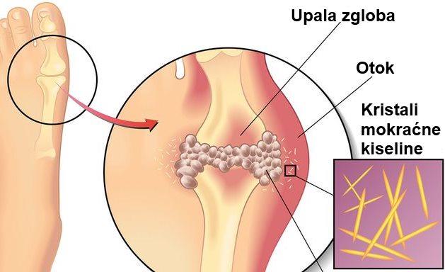 mokracna kiselina u urinu