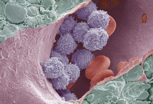 aplasticna anemija