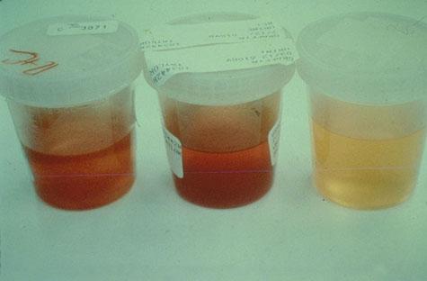 hemoglobin u urinu