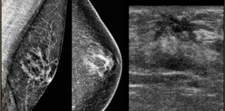 displazija dojke