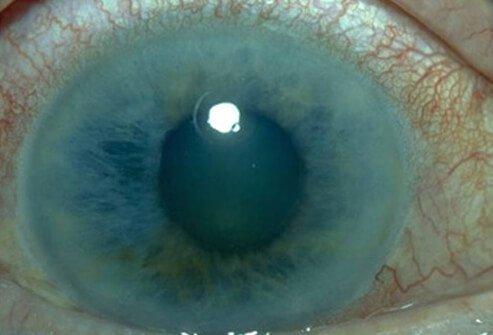 glaukom oka