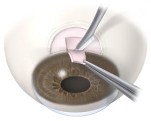 glaukom operacija