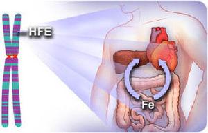 hemohromatoza uzrok