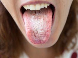 kandida gljivice u ustima