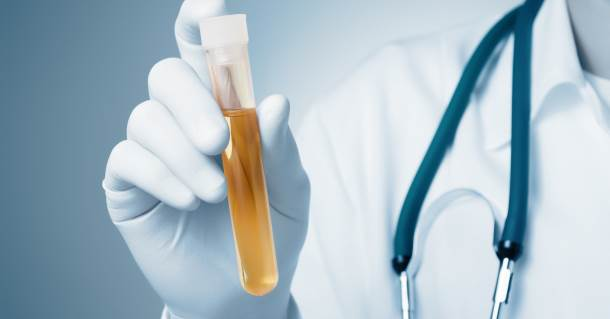leukociti u urinu