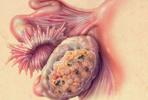 rak jajnika stadijumi