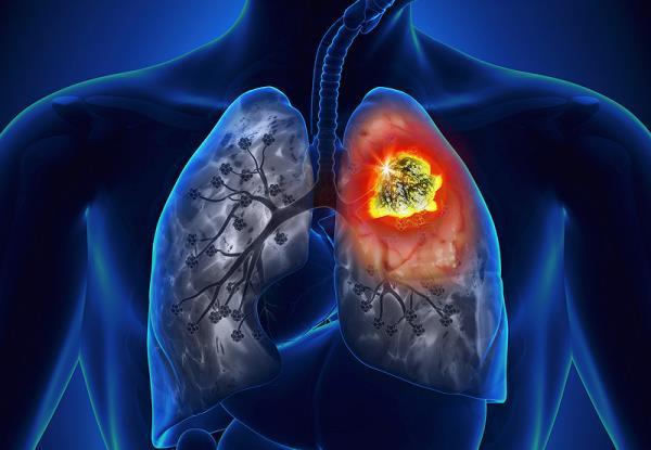 simptomi raka pluca