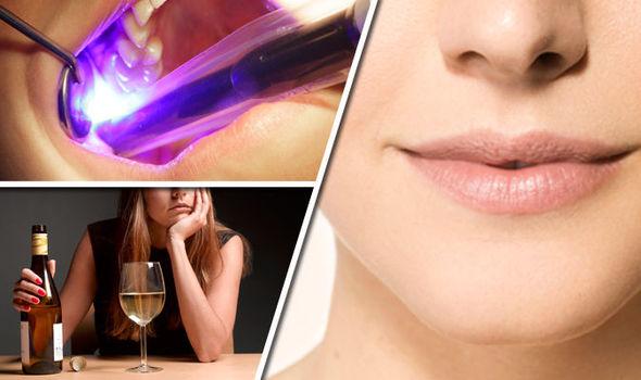 simptomi raka usta
