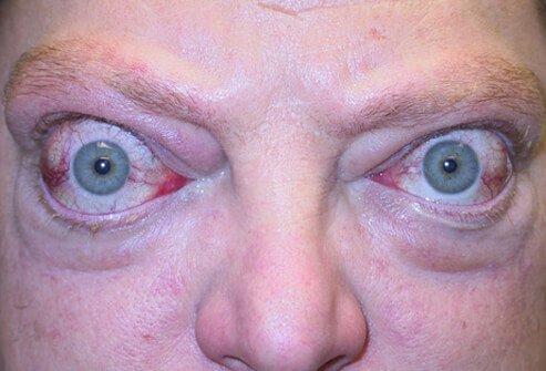 Grejvs-Bazedovljeva bolest
