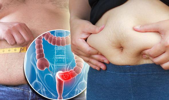 adenokarcinom debelog creva