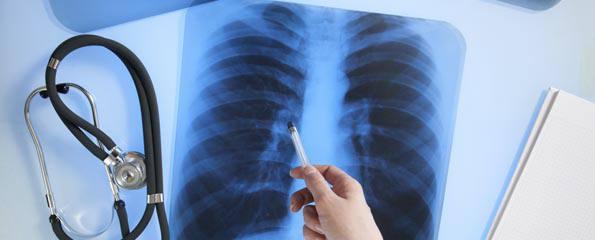 adenokarcinom pluca prezivljavanje