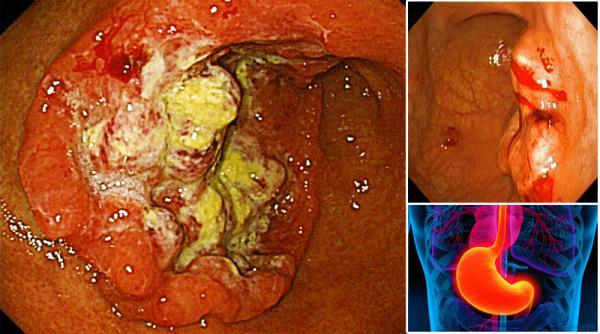 adenokarcinom zeluca