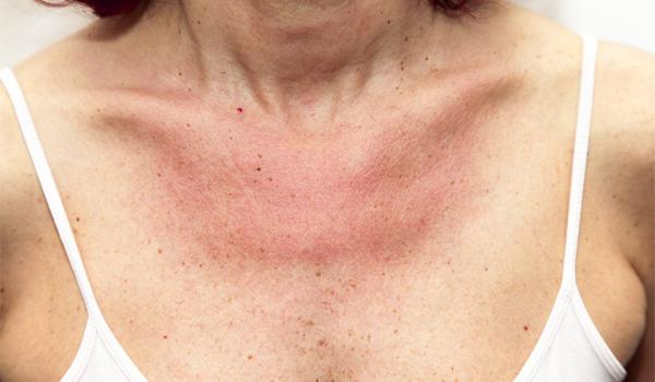 alergija na sunce kod dece