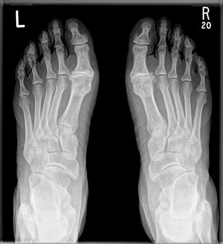 artroza stopala