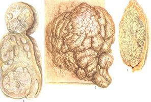 benigni tumor