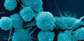 benigni tumori