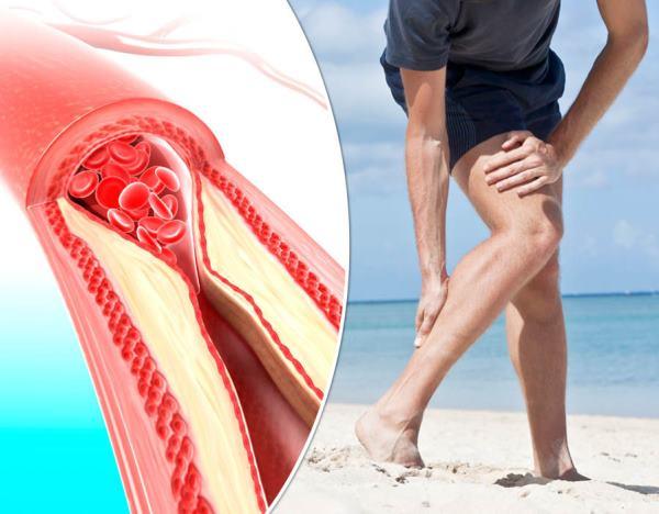 bolovi u nogama zbog vena