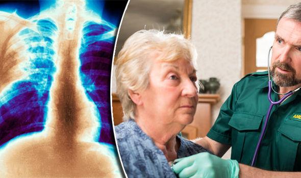 bronhitis kod odraslih