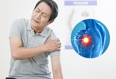 burzitis ramena