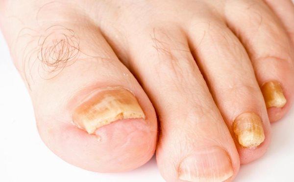 gljivicna infekcija nokta
