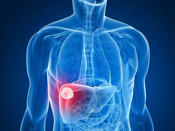 hemangiom jetre