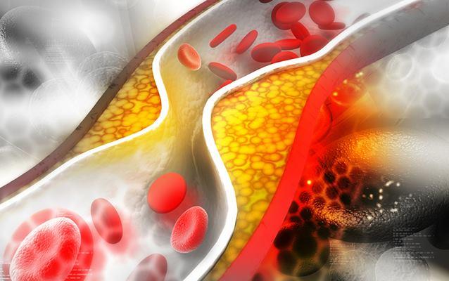 holesterol u krvi