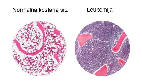 leukemija uzrok