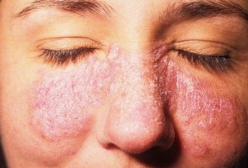 lupus na licu