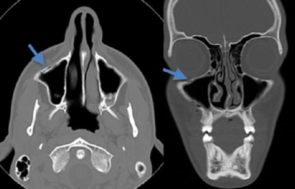 maksilarni sinusi bolesti