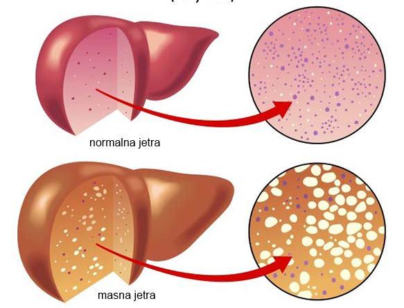 masna jetra kod dece