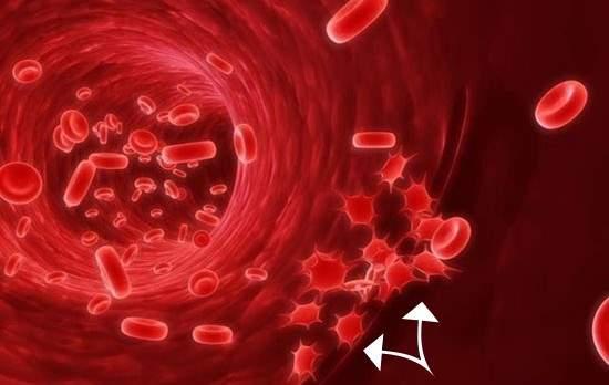 niski trombociti