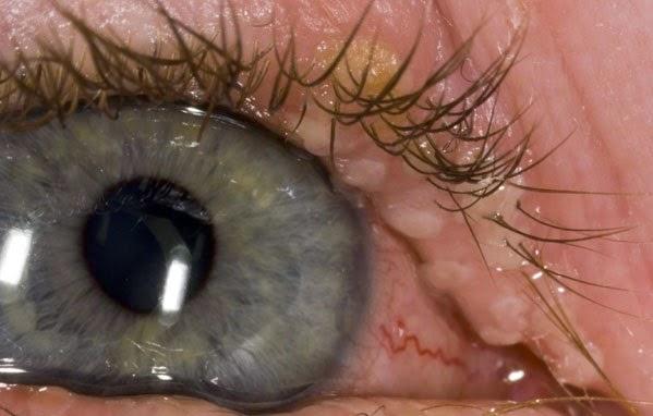 okularni herpes