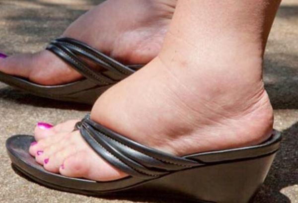 oticanje stopala