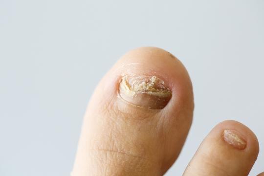 psorijaza na noktima uzrok