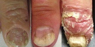 psorijaza noktiju
