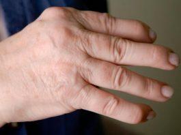 psorijazni artritis