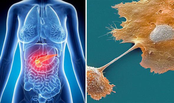 rak pankreasa uzroci