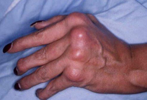 simetricni psorijaticni artritis