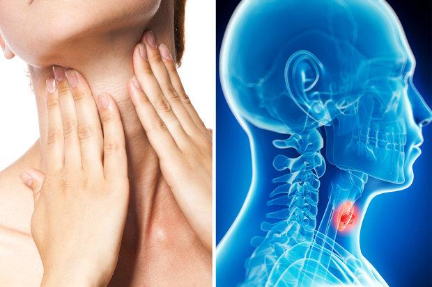 simptomi raka grla