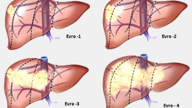 stadijumi raka jetre