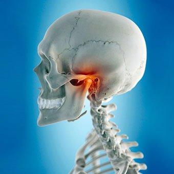 temporomandibularni sindrom