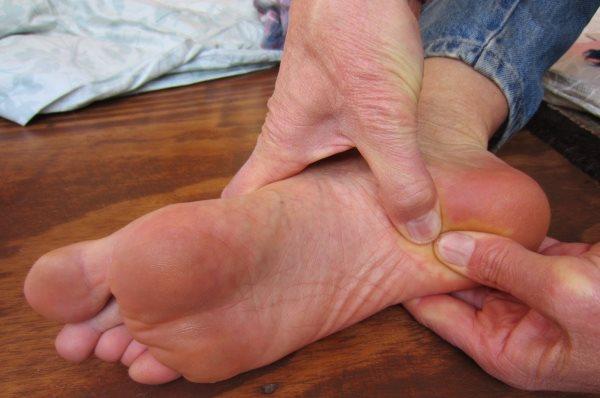 trn u peti simptomi